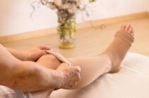 Meias elásticas: entenda porque são importantes no tratamento de varizes